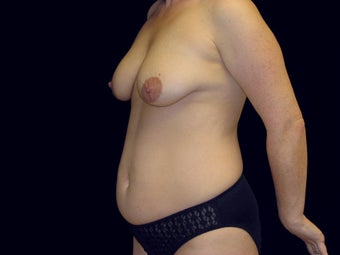 Mommy Makeover, Breast Lift, Tummy Tuck, Lipo before 233757