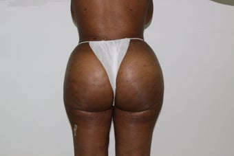 Brazilian Butt Lift after 526152