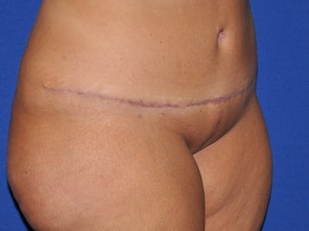 Abdominal Panniculectomy after 582153