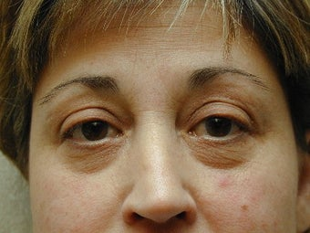 Bilateral Upper Blepharoplasty with Mid-Face Lift 425046