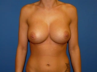 Breast Augmentation after 240251
