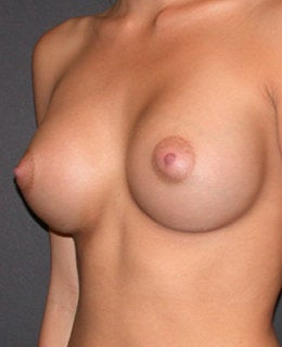 Breast Augmentation after 284114