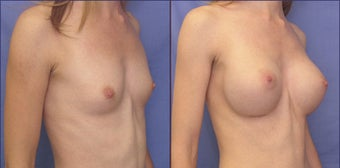 Breast augmentation before 142820