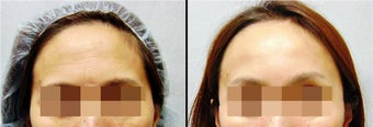 Endoscopic Brow Lift before 649400