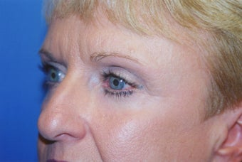 Blepharoplasty after 570475