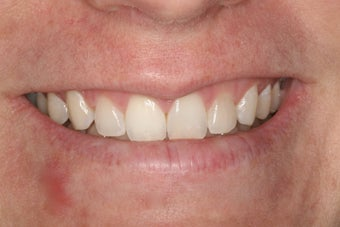 Whitening a single anterior tooth after 343722
