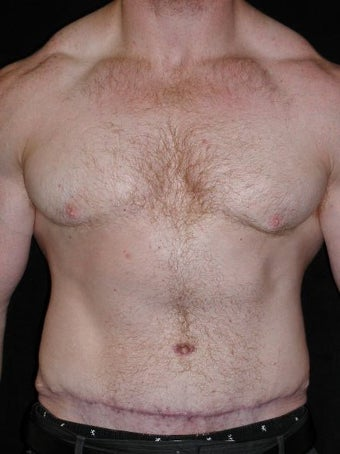 Male Tummy Tuck, Flank Liposuction, Male Breast Reduction after 550017