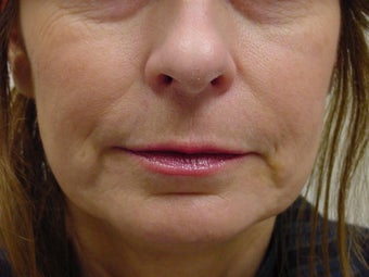 Restylane treatment for marionette lines  before 109751