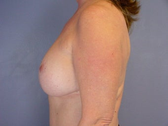 BREAST LIFT/ BREAST AUGMENTATION after 280029