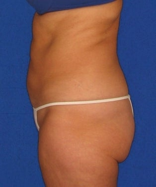 Liposuction, SmartLipo™ after 312311