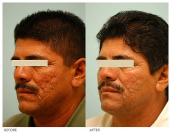 Acne Scarring Correction after 136799