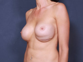 Breast Implant Revision 461496