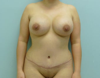 Tummy Tuck with Breast Augmentation