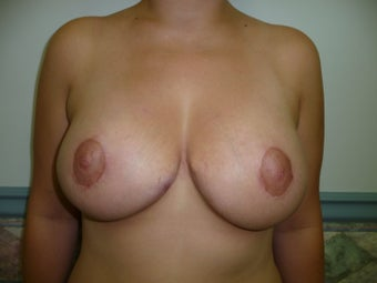 32 year old female who underwent Ultimate Breast Lift