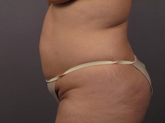 Tummy Tuck before 325631