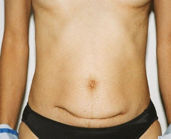 Abdominoplasty Revision before 493649