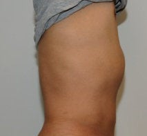 Smartlipo in Males after 123628