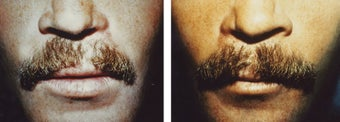 mustache hair transplant before 369175