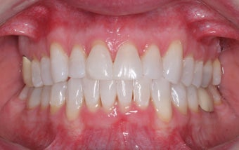 Invisalign after 372772
