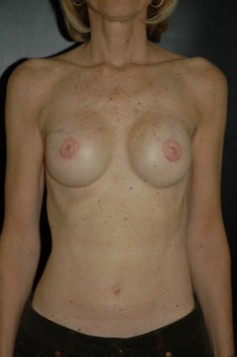 Breast Reconstruction after 163484