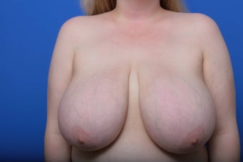 Breast Reduction before 621913