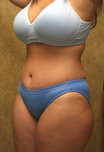 tummy tuck after 304681