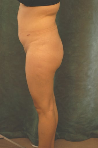 Women's Buttocks Augmentation   before 518152