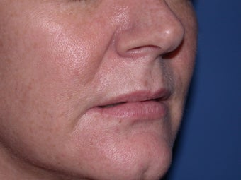Before and After Lip Juvederm before 57749