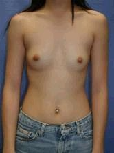Breast Augmentation before 356554