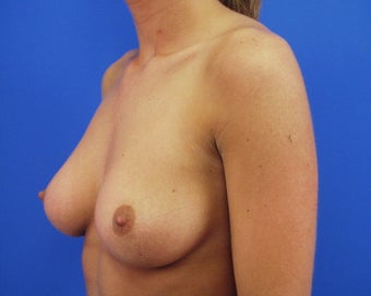 Before and After Breast Augmentation before 64843