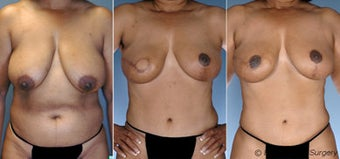 Breast reconstruction before 270815