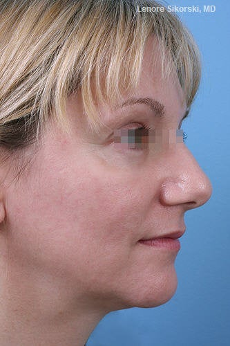 Fractional CO2 Laser Resurfacing  after 114176