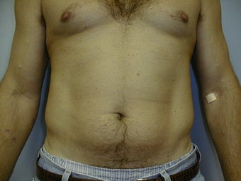 Male contouring liposuction before 590924