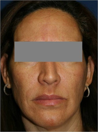 47 year old female treated for melasma, age spots, large pores and rough skin texture before 645449