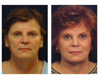 Neck Lift after 354243