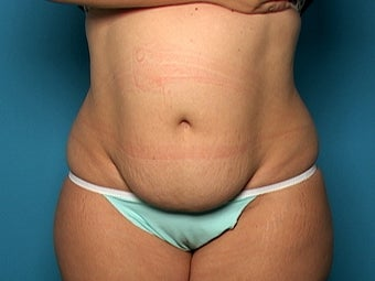 Abdominoplasty before 134588