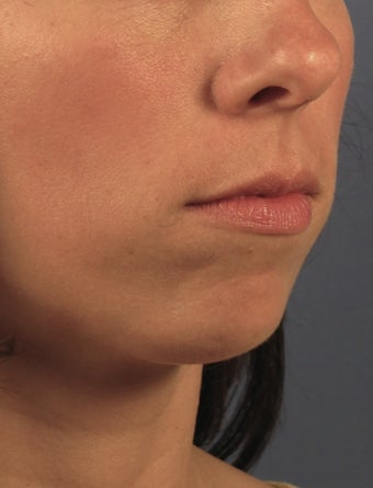 Chin Implant before 414148