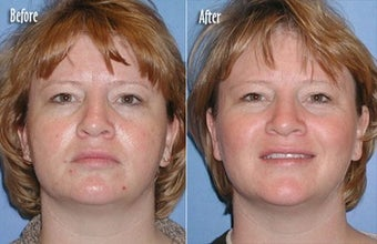 IPL for Freckles, Age Spots on Chest before 6368