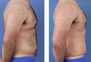 Tummy tuck on a male age 24 after 6728