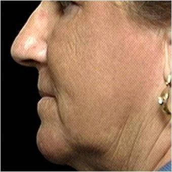 CO2 Laser Skin Resurfacing after 255555