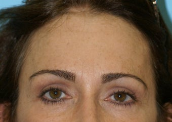 Forehead Lift after 581211