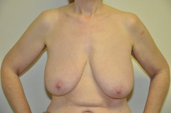 Breast Lift before 329750