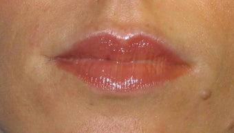 Juvederm Lip Augmentation after 84412