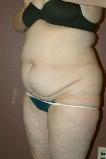 Liposuction before 342256
