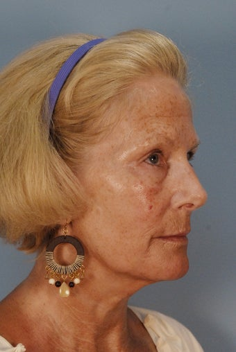 Qt Mini facelift with laser skin resurfacing before 135873