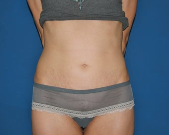 Mini-Abdominoplasty after 644758