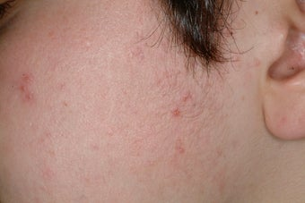 Laser Acne Treatment after 86809
