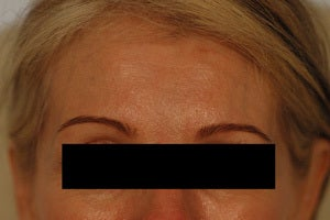 Coreecting Asymmetry with Botox (Dysport Browlift).  before 649422