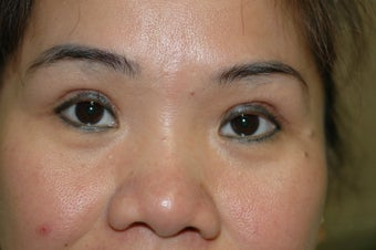 Asian eyelid surgery --  Double lid crease procedure 341490