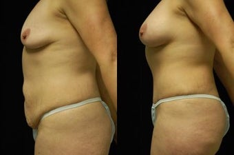Tummy Tuck and Breast Augmentation, gel implants 392054